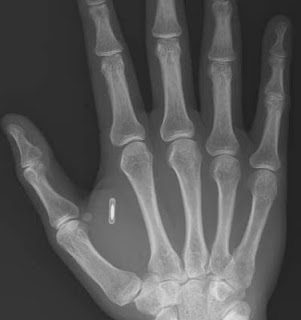Swedish woman gets microchip 'key' implanted in hand
