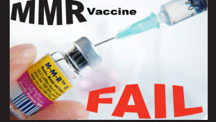 Malignant Mumps In MMR Vaccinated Children