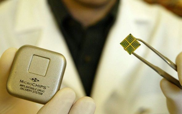 Remote controlled chip - the future of contraceptives