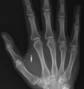 Staff at Swedish office to be implanted with RFID chips