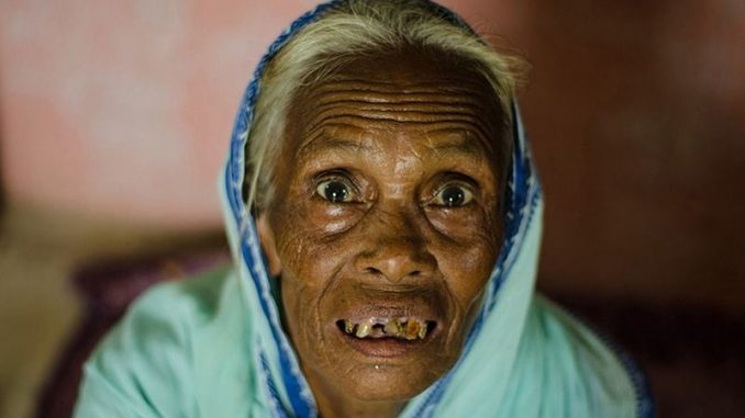 """A woman from India accused of being a """"witch"""""""