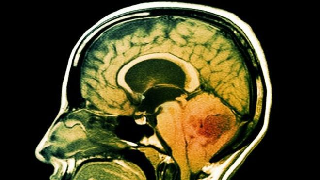 Scientists have discovered that antidepressants and blood thinners can cause brain cancer to eat itself