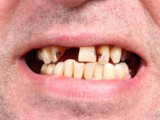 A new study proves that fluoride does not create healthy teeth as Brits are said to have better teeth than Americans