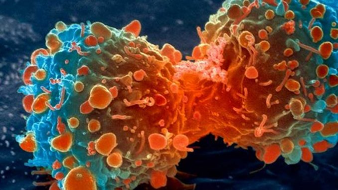 Scientists say cancer may actually be contagious