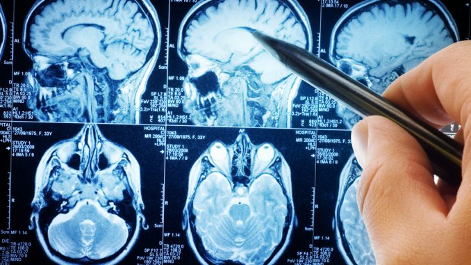 Medical journal admits that Fluoride is deadly to human brains