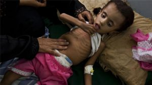 """UNICEF: Child Malnutrition At """"All Time High"""" In Yemen"""