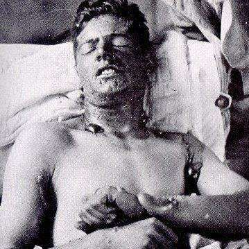 Soldier after involuntary exposure to mustard gas via gas chamber.