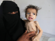 UN report warns of famine for 60% of people in Yemen