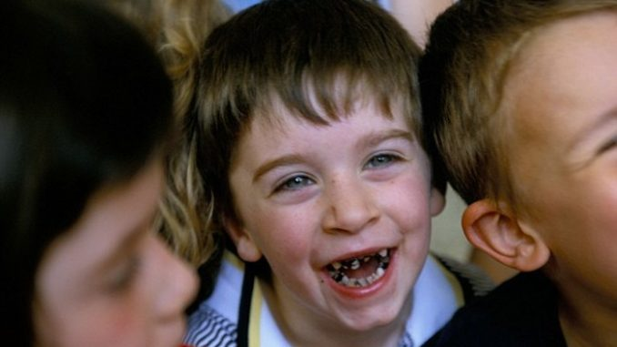 Ireland gripped by tooth decay crisis following the mass fluoridation of their water supply