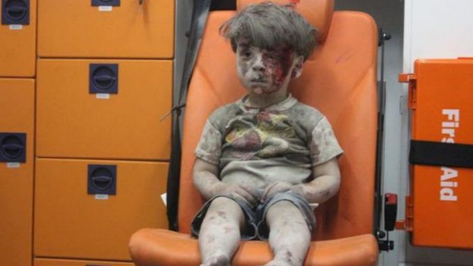 White Helmets lied about Aleppo Boy's injuries, admits father