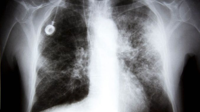 Ohio State University say that chemotherapy enables cancer to spread from the breast to the lungs