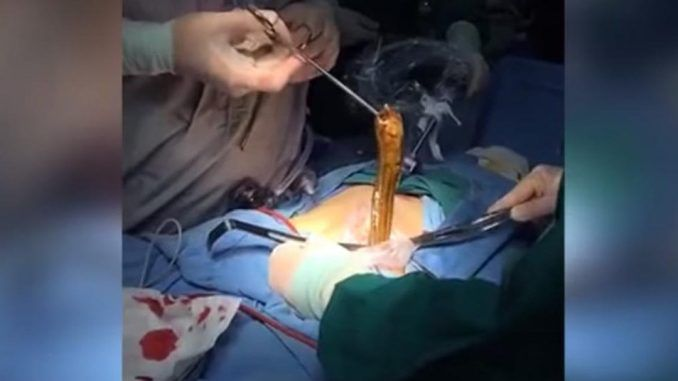 Doctors remove giant eel from drunk man's butt