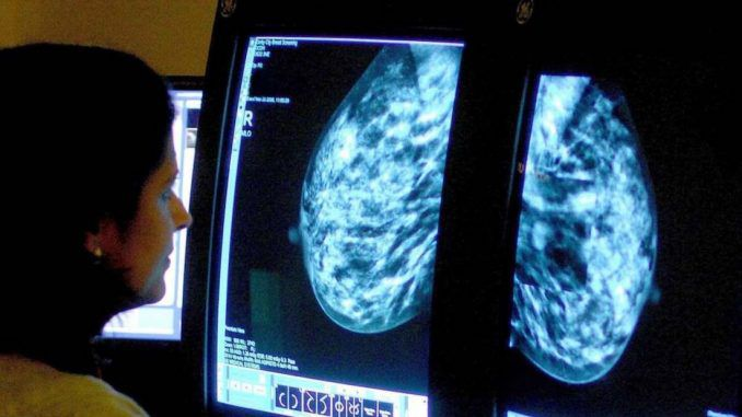 Women with high cholesterol less likely to develop breast cancer, scientists say