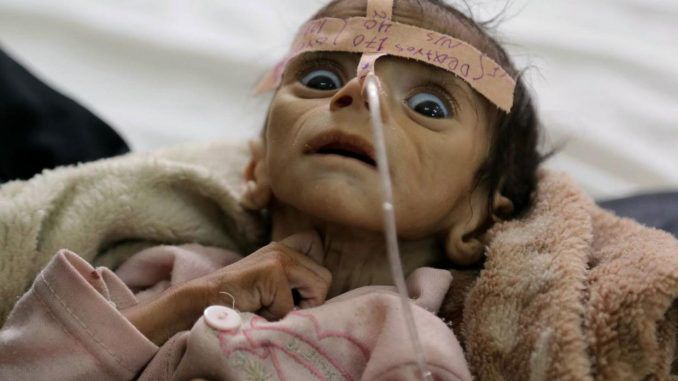 400k children starving to death in Yemen, UN report finds