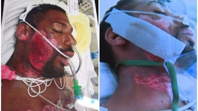 Cops hold down disabled man on hot pavement until his face melts away