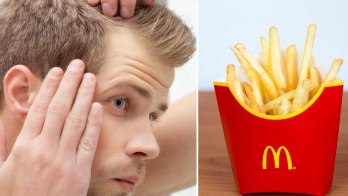 McDonald's may cure baldness, according to scientists