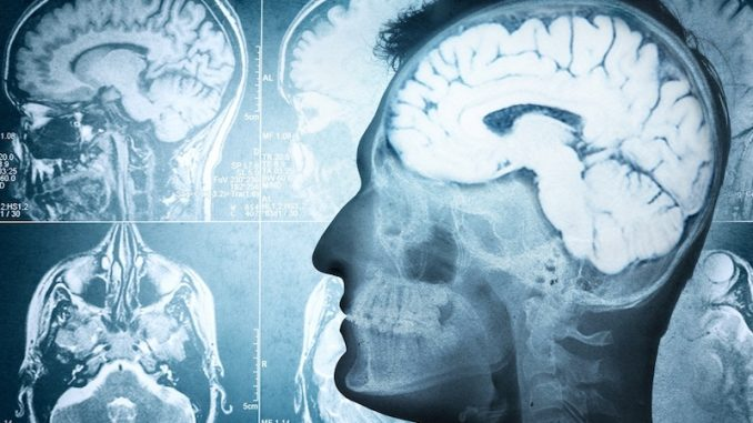 US scientists say they have found a link between people who are Christian and brain damage