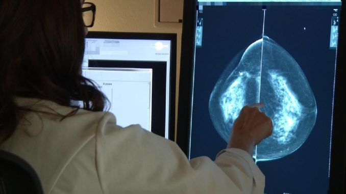 Chemotherapy is completely useless for breast cancer patients, study finds