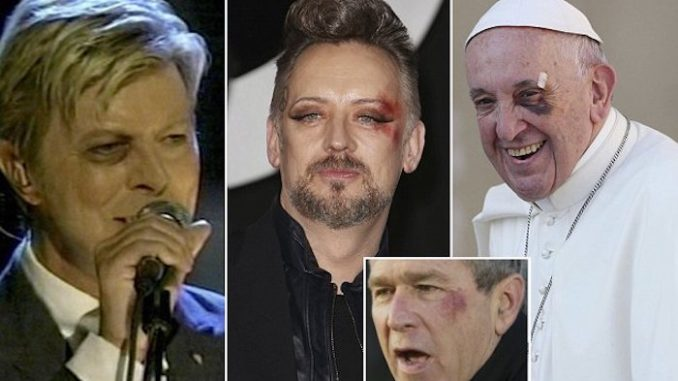 Celebrities and politicians with left black eyes are part of the Illuminati