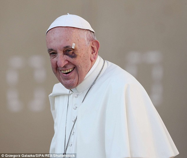 The Pope, pictured in 2017, has also been pictured with a black eye, which was said to have been caused by a collision while he was riding his 'pope-mobile'
