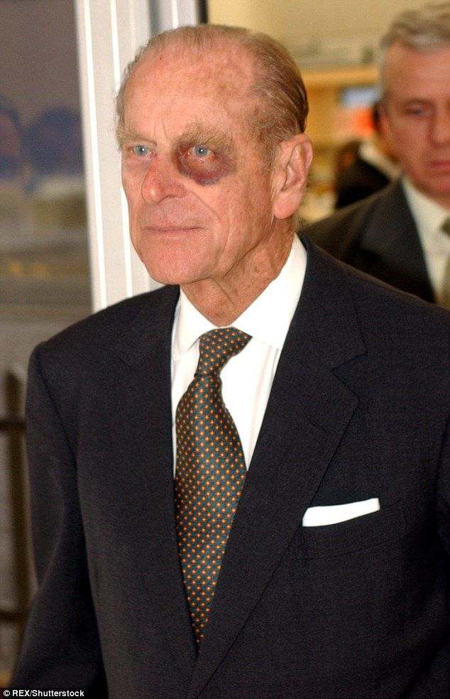 Royals have also been photographed with black eyes in the past, including Prince Philip. He is pictured here in 2004