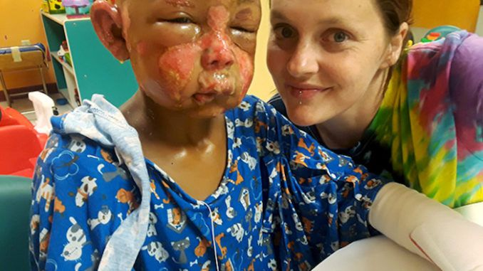 A 7-year-old boy has been hospitalized with severe burns after another boy doused him with nail polish remover and set him on fire.