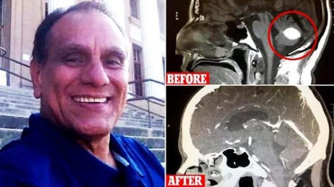 Doctors in California are mystified after finding a patient's suspected malignant brain tumor disappeared without surgical intervention.