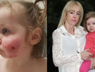"A toddler has been scarred for life after being bitten 15 times by Somali boys who ""took at least ten chunks"" out of her face and then ""strangled"" her until she was ""blue"" — and the media is refusing to report the ethnicity of the attackers."