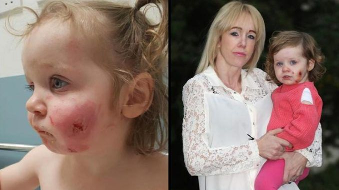 "A toddler has been scarred for life after being bitten 15 times by boys who ""took at least ten chunks"" out of her and then ""strangled"" her."