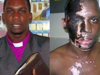 "A Christian pastor who was attacked with acid by Muslims shouting ""Allahu Akbar"" has survived the harrowing ordeal and now has an important message to share with the entire world."