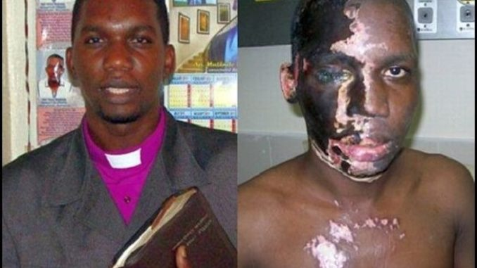 """A Christian pastor who was attacked with acid by Muslims shouting """"Allahu Akbar"""" has survived the harrowing ordeal and now has an important message to share with the entire world."""