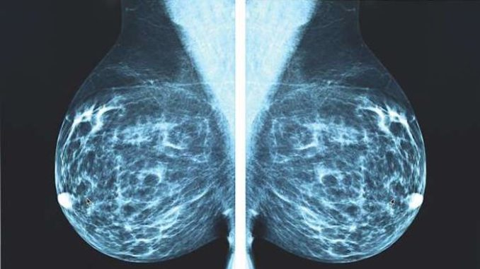 X-ray Mammography is accelerating cancer epidemic, top doctor warns