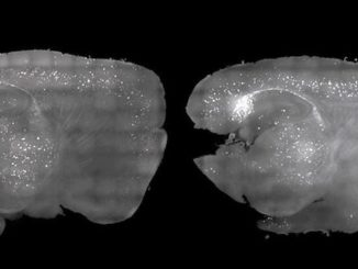 Scientists clear alzheimer's plaque in mice using light and sound