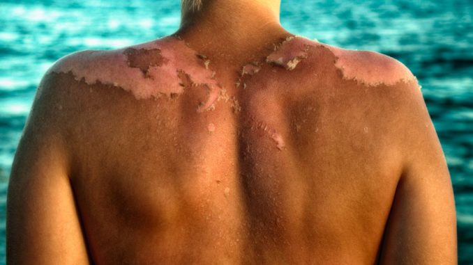 The chemicals in sunscreen absorb into your blood, new study finds