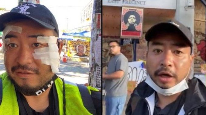 A Japanese artist and reporter who went to Seattle to cover the Capitol Hill Autonomous Zone was severely beaten up.